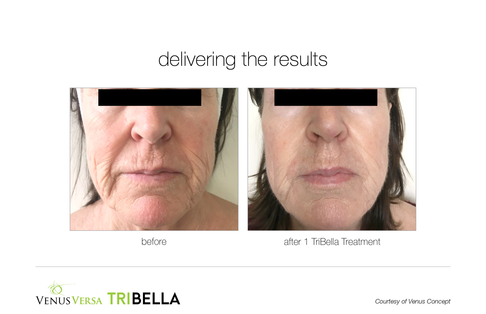 tribella patient